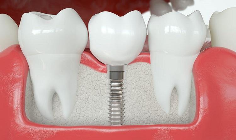Cấy ghép Implant không ảnh hưởng tới răng khác