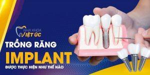 Trồng răng Implant tại Nha khoa Việt Úc