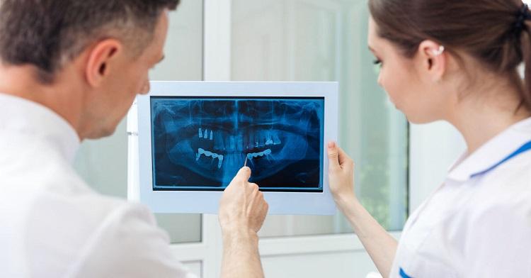 Chọn địa chỉ trồng răng Implant uy tín