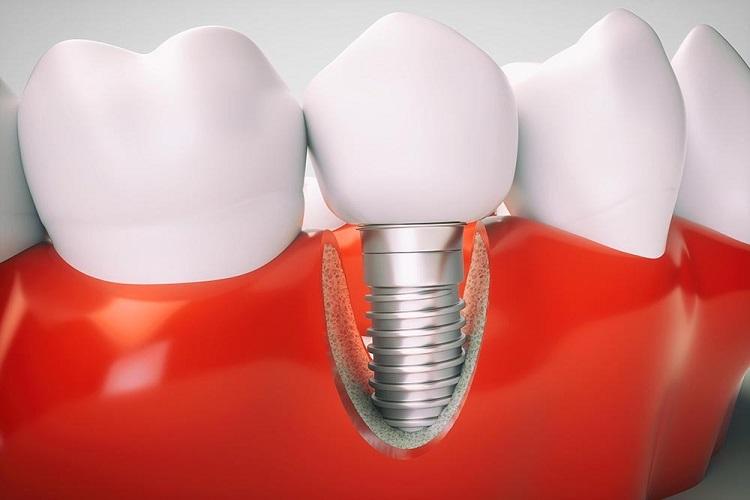 Trồng răng sứ Implant không nguy hiểm