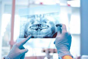 Chụp Panorama để bác sĩ biết bệnh về răng kịp thời điều trị