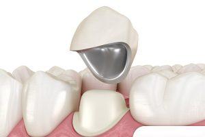 Chi phí bọc răng sứ Titan phải chăng