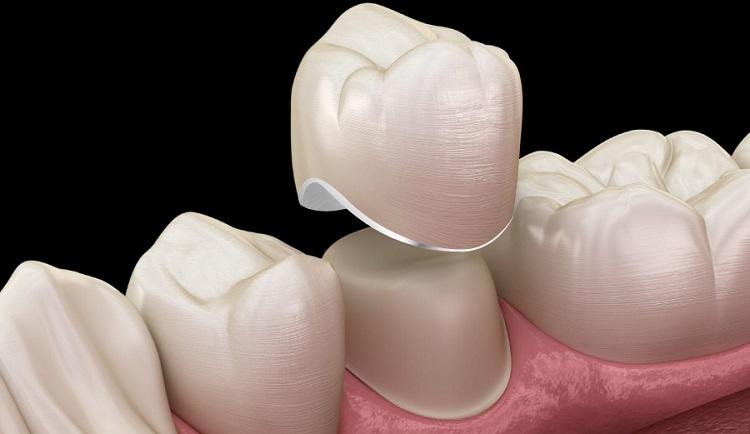 Bọc răng sứ Titan có độ chịu lực tốt