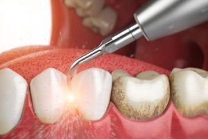 Lấy cao răng định kỳ cho răng miệng sạch sẽ