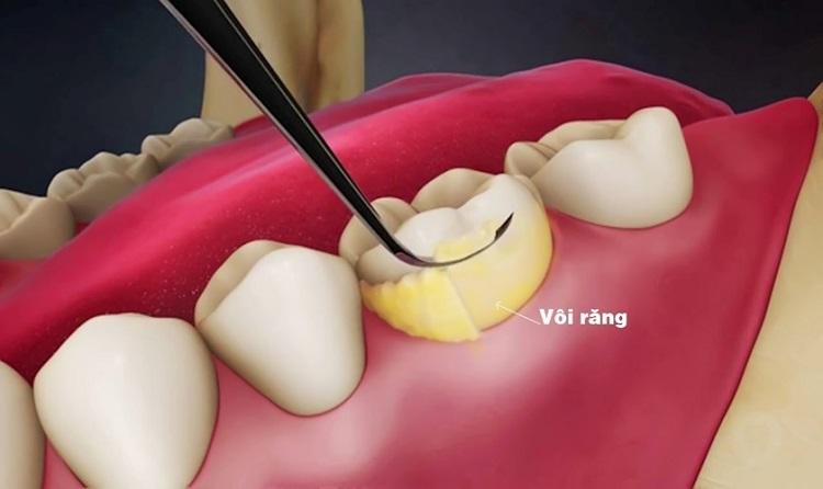 Khoảng 3-6 tháng nên lấy cao răng 1 lần