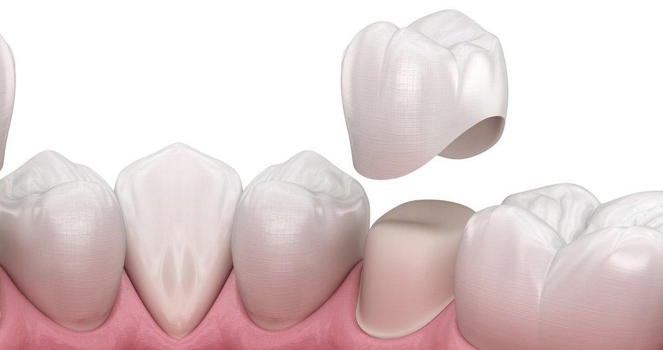 Dental Center Care là địa chỉ bọc răng sứ uy tín