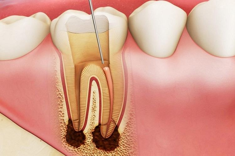 Răng bị sâu và viêm nặng cần lấy tủy trước khi bọc sứ