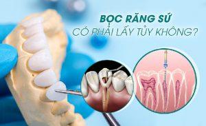 Bọc răng sứ lấy tủy khi răng bị hỏng tủy