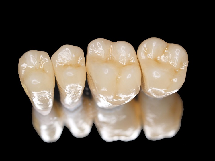 Dịch vụ bọc răng sứ Titan khá phổ biến