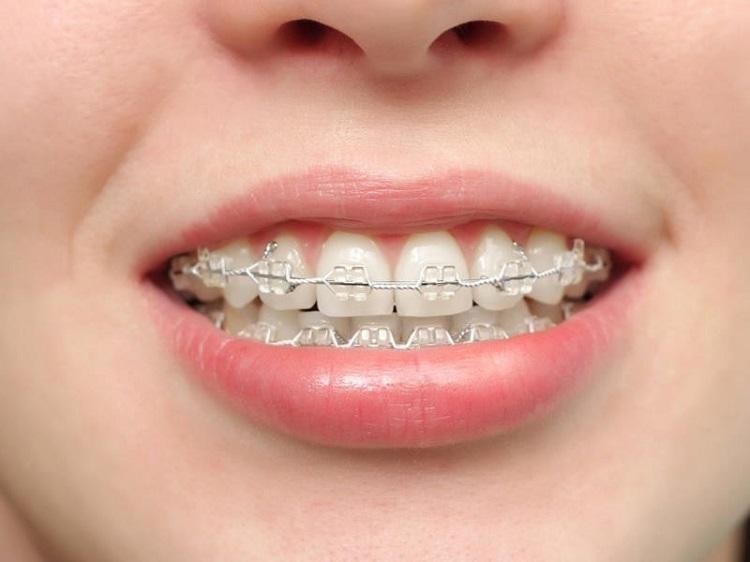 Niềng răng thẩm mỹ giúp răng đều đẹp hơn