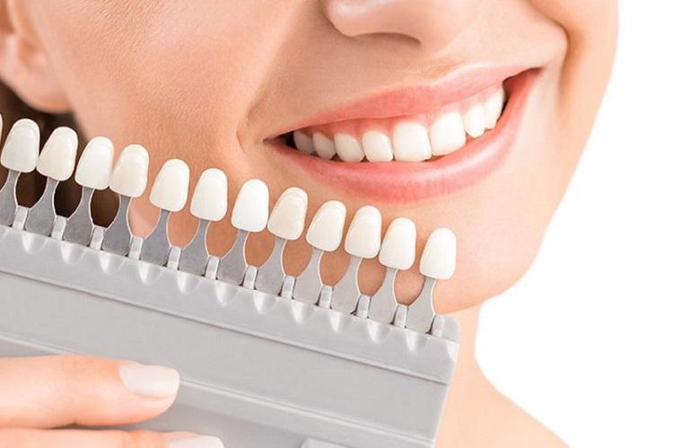 Bọc răng sứ mang lại hàm răng trắng tự nhiên