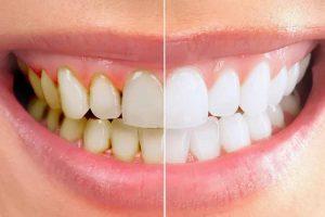 Cao răng hình thành từ mảng bám cặn bã thức ăn thừa trên răng