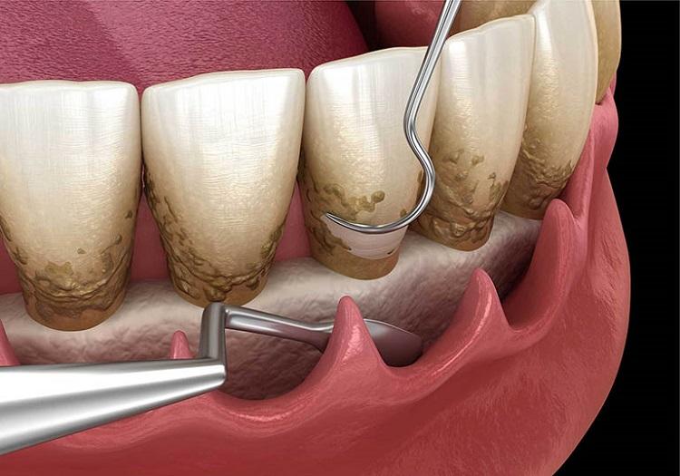 Cần phải lấy cao răng để tránh bị viêm răng