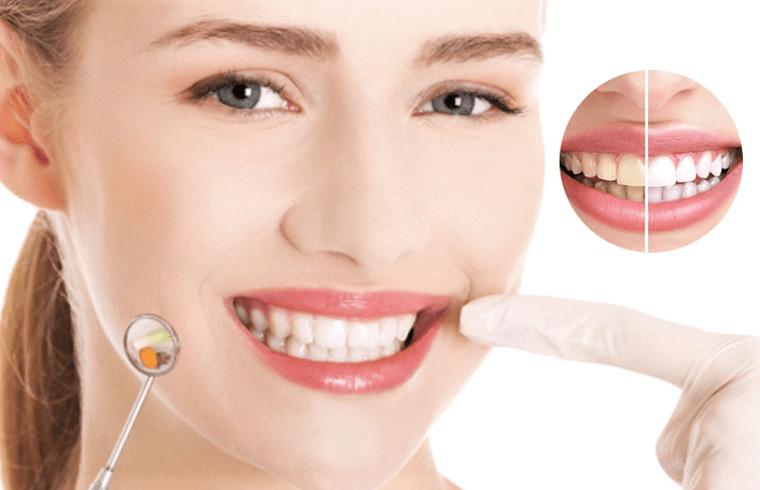 Lấy cao răng xong hàm răng sạch sẽ hơn