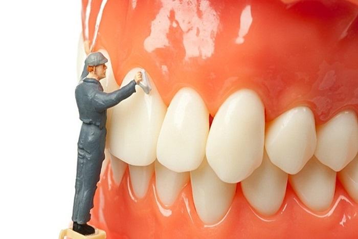 Lấy cao răng nên định kỳ 6 tháng 1 lần