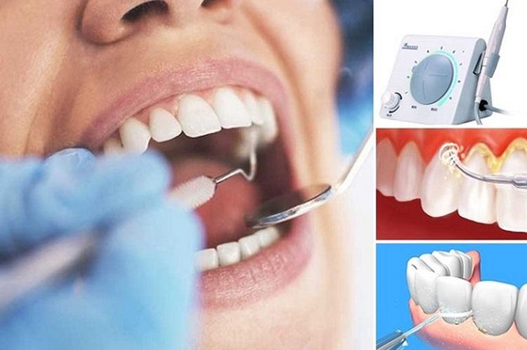 Quy trình lấy cao răng với máy siêu âm hiện đại