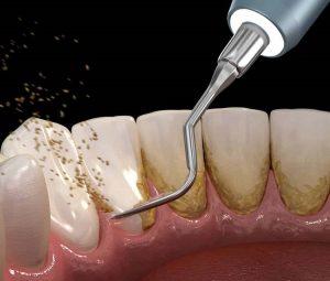 Lấy cao răng trung bình 20-40 phút là xong