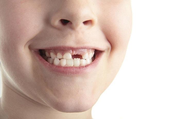 Mở bị gãy răng là điềm không lành