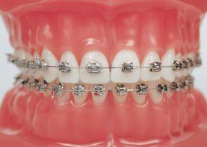 Niềng răng bằng kim loại