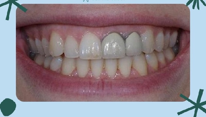 Sau thời gian dài răng sứ Titan có thể bị đen viền răng