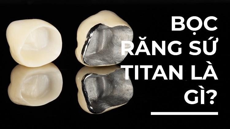 Bọc răng sứ Titan là gì?