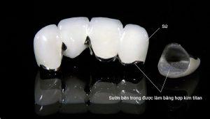 Phương pháp bọc răng sứ Titan