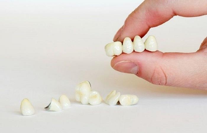 So sánh tuổi thọ thì răng sứ Titan bền lâu hơn
