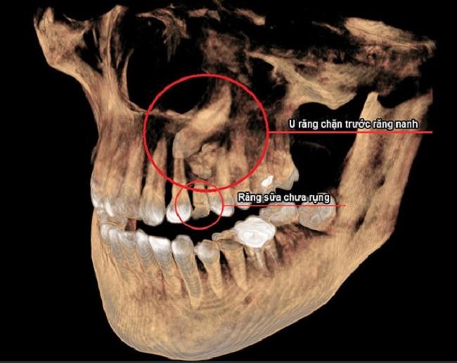 U răng là dạng u lành tính có thể điều trị